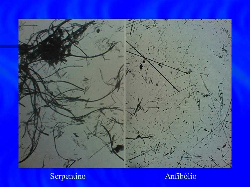 Epidemiologia das DRA no Brasil n Asbestose: SP-FUNDACENTRO-2000 indústria cimento-amianto: 828 trabalhadores: asbestose 74 (8,9%); indústria cimento-amianto: 828 trabalhadores: asbestose 74 (8,9%); placas pleurais 246 (29,7%) placas pleurais 246 (29,7%) n Ca de pulmão: 3 casos (SP) n Mesotelioma: 3 casos (SP)