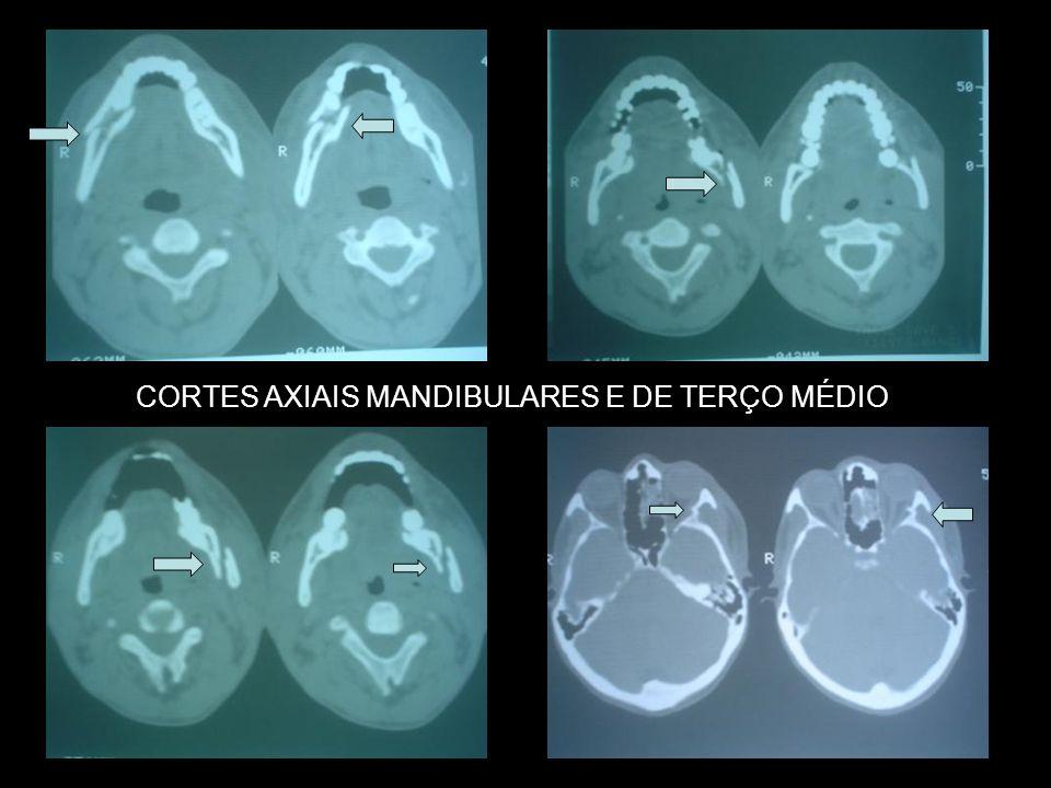 CORTES AXIAIS MANDIBULARES E DE TERÇO MÉDIO