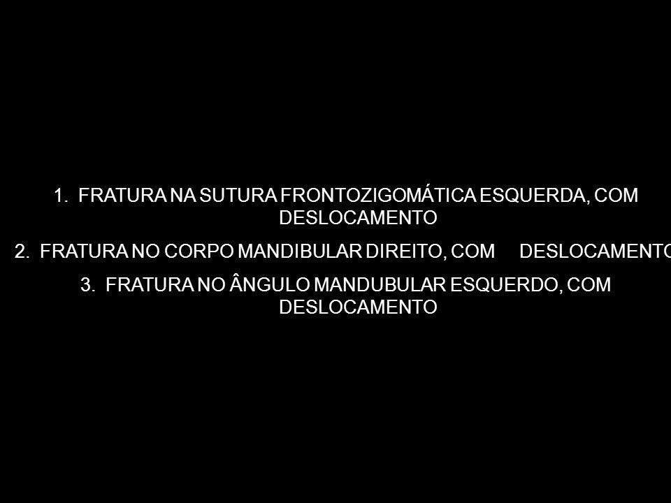 1.FRATURA NA SUTURA FRONTOZIGOMÁTICA ESQUERDA, COM DESLOCAMENTO 2.FRATURA NO CORPO MANDIBULAR DIREITO, COM DESLOCAMENTO 3.FRATURA NO ÂNGULO MANDUBULAR