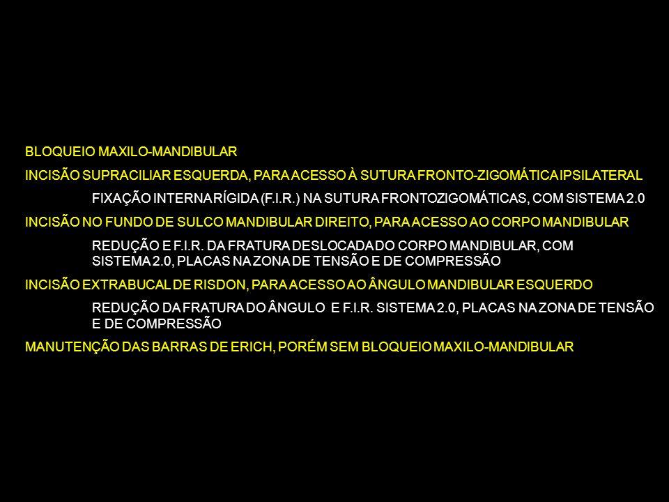 BLOQUEIO MAXILO-MANDIBULAR INCISÃO SUPRACILIAR ESQUERDA, PARA ACESSO À SUTURA FRONTO-ZIGOMÁTICA IPSILATERAL FIXAÇÃO INTERNA RÍGIDA (F.I.R.) NA SUTURA