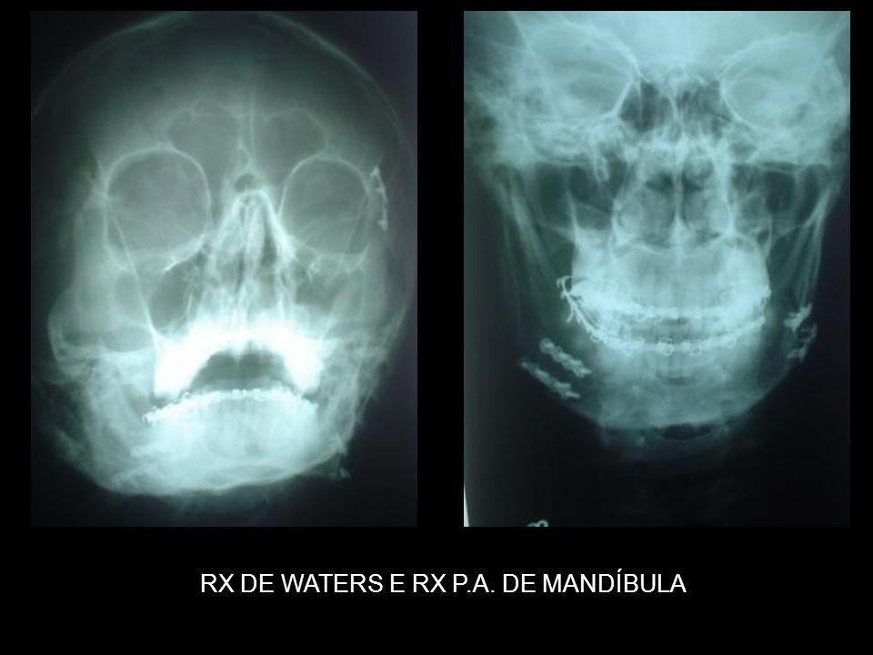 RX DE WATERS E RX P.A. DE MANDÍBULA