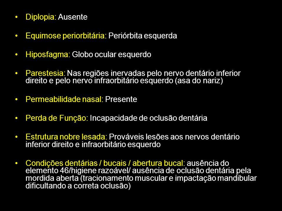 Diplopia: Ausente Equimose periorbitária: Periórbita esquerda Hiposfagma: Globo ocular esquerdo Parestesia: Nas regiões inervadas pelo nervo dentário
