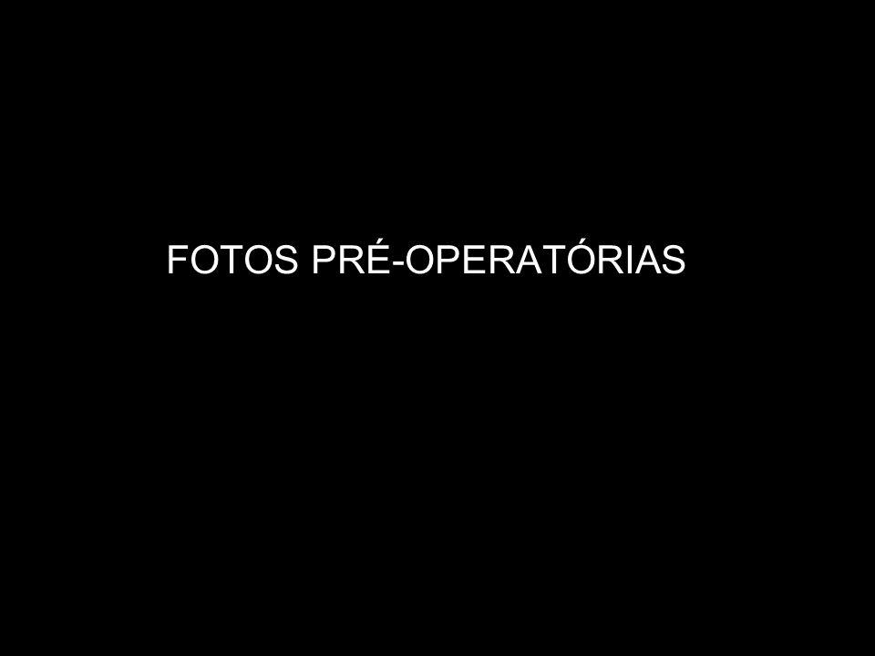 BLOQUEIO MAXILO-MANDIBULAR INCISÃO SUPRACILIAR ESQUERDA, PARA ACESSO À SUTURA FRONTO-ZIGOMÁTICA IPSILATERAL FIXAÇÃO INTERNA RÍGIDA (F.I.R.) NA SUTURA FRONTOZIGOMÁTICAS, COM SISTEMA 2.0 INCISÃO NO FUNDO DE SULCO MANDIBULAR DIREITO, PARA ACESSO AO CORPO MANDIBULAR REDUÇÃO E F.I.R.