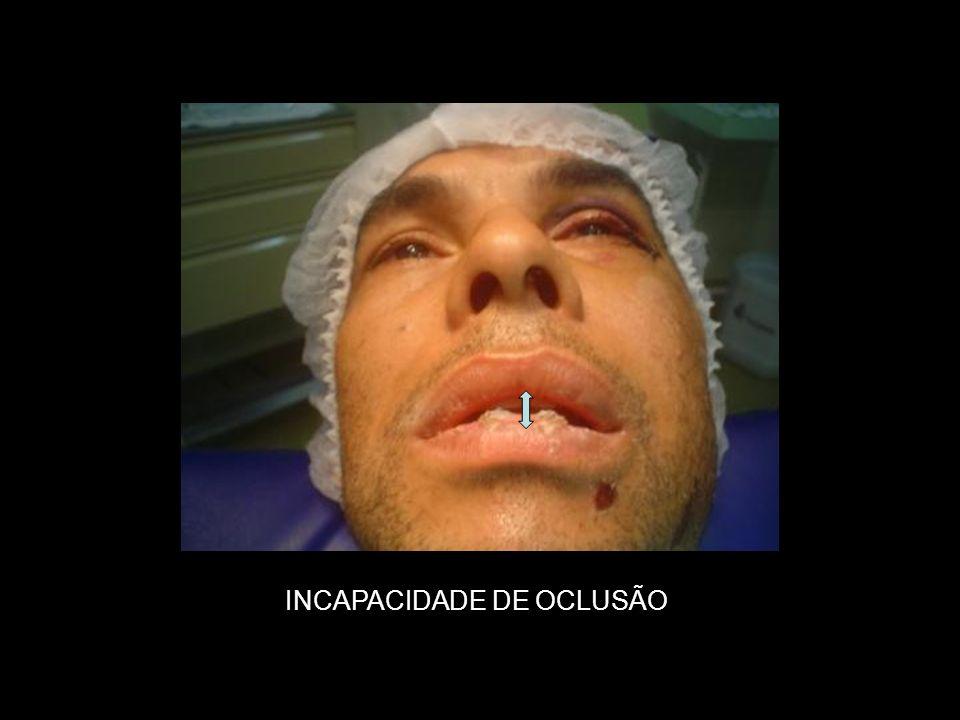 PÓS-OPERATÓRIO DE 18 DIAS
