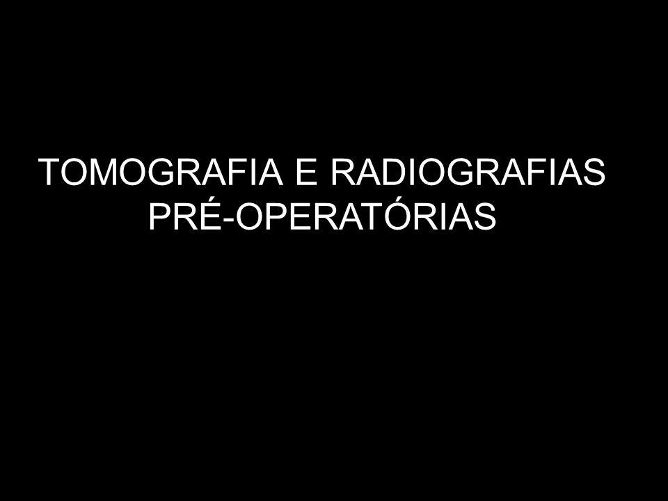 RADIOGRAFIAS DE WATERS, LATERAL OBLÍQUA E P.A. DE MANDÍBULA