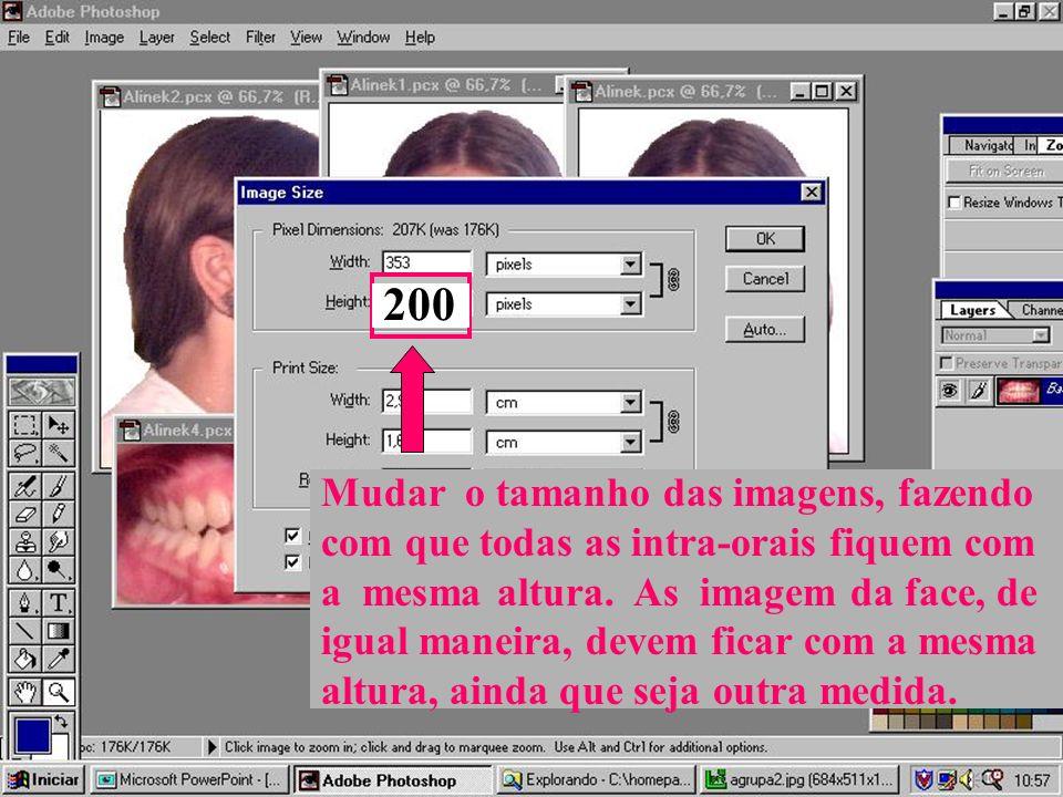 Mudar o tamanho das imagens, fazendo com que todas as intra-orais fiquem com a mesma altura.