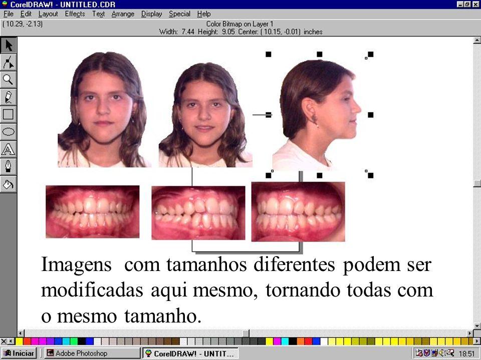 Imagens com tamanhos diferentes podem ser modificadas aqui mesmo, tornando todas com o mesmo tamanho.