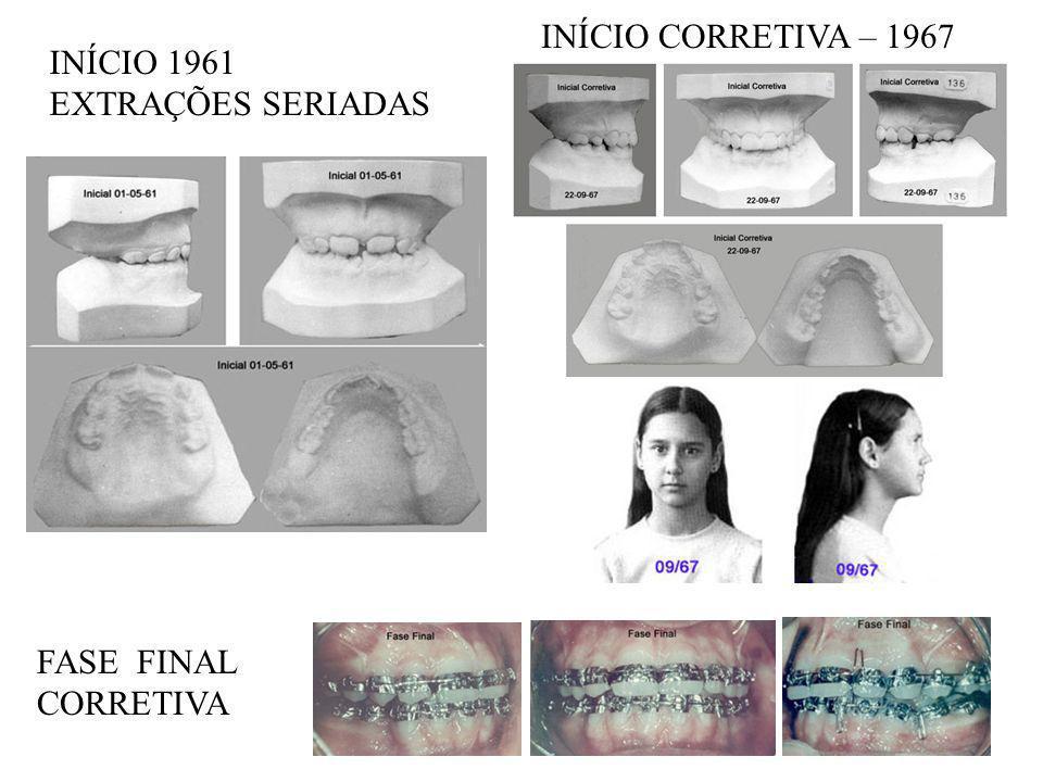 INÍCIO 1961 EXTRAÇÕES SERIADAS INÍCIO CORRETIVA – 1967 FASE FINAL CORRETIVA