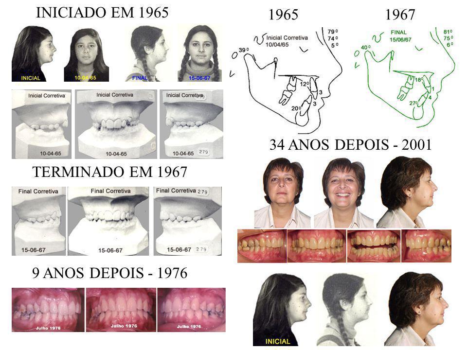 INICIADO EM 1965 TERMINADO EM 1967 9 ANOS DEPOIS - 1976 1965 1967 34 ANOS DEPOIS - 2001