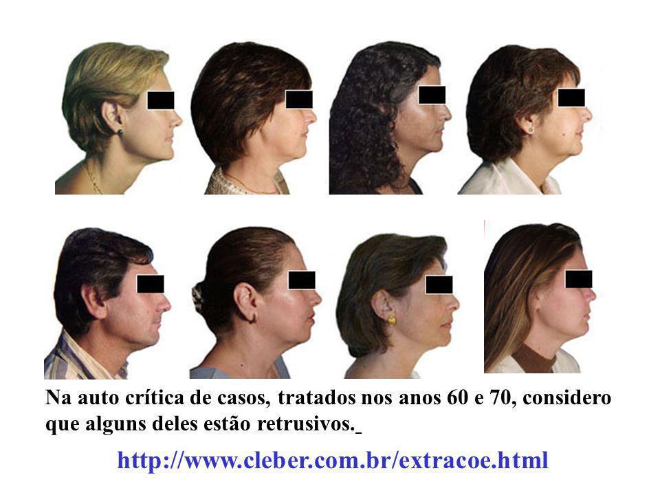 Na auto crítica de casos, tratados nos anos 60 e 70, considero que alguns deles estão retrusivos. http://www.cleber.com.br/extracoe.html