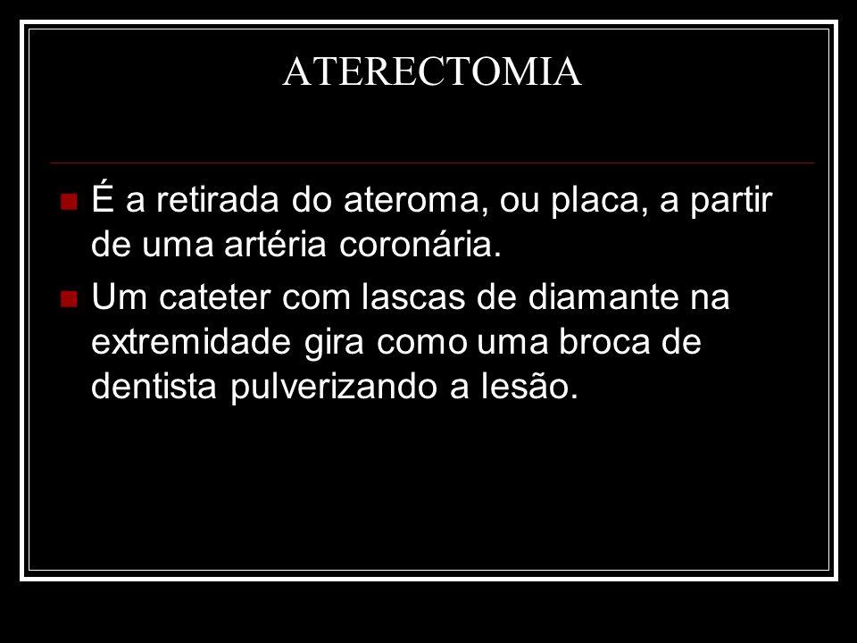 ATERECTOMIA É a retirada do ateroma, ou placa, a partir de uma artéria coronária. Um cateter com lascas de diamante na extremidade gira como uma broca