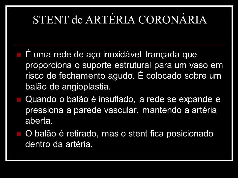 STENT de ARTÉRIA CORONÁRIA É uma rede de aço inoxidável trançada que proporciona o suporte estrutural para um vaso em risco de fechamento agudo. É col