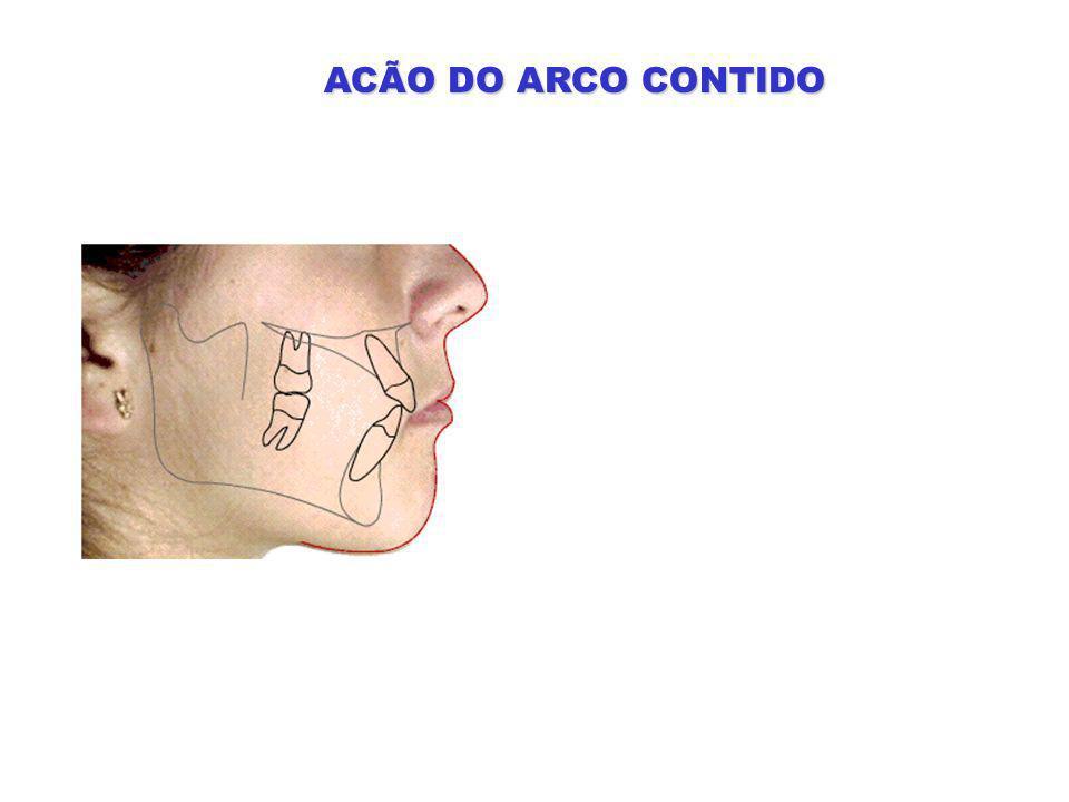 ACÃO DO ARCO CONTIDO