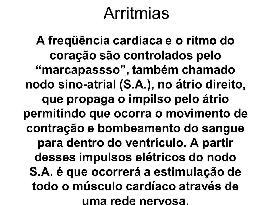 Arritmias A freqüência cardíaca e o ritmo do coração são controlados pelo marcapassso, também chamado nodo sino-atrial (S.A.), no átrio direito, que p