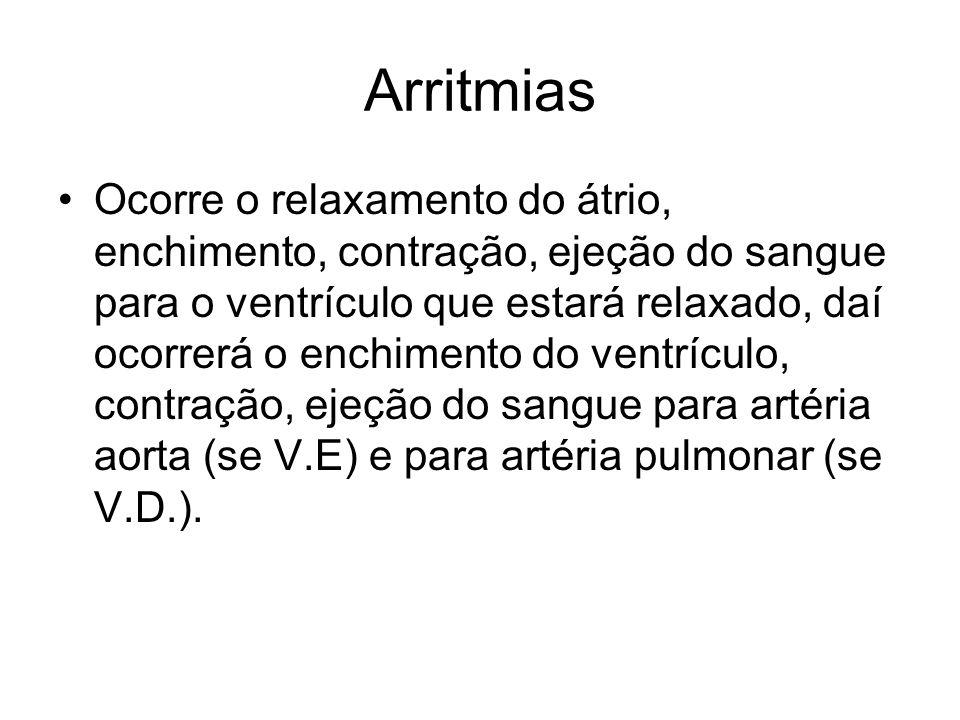 Arritmias Ocorre o relaxamento do átrio, enchimento, contração, ejeção do sangue para o ventrículo que estará relaxado, daí ocorrerá o enchimento do v