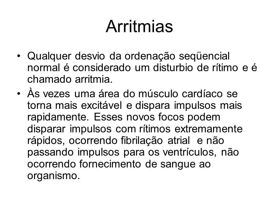 Arritmias Qualquer desvio da ordenação seqüencial normal é considerado um disturbio de rítimo e é chamado arritmia. Às vezes uma área do músculo cardí
