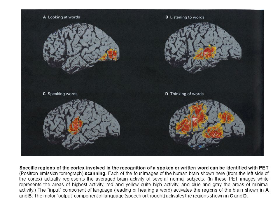 Specific regions of the cortex involved in the recognition of a spoken or written word can be identified with PET (Positron emission tomograph) scanni