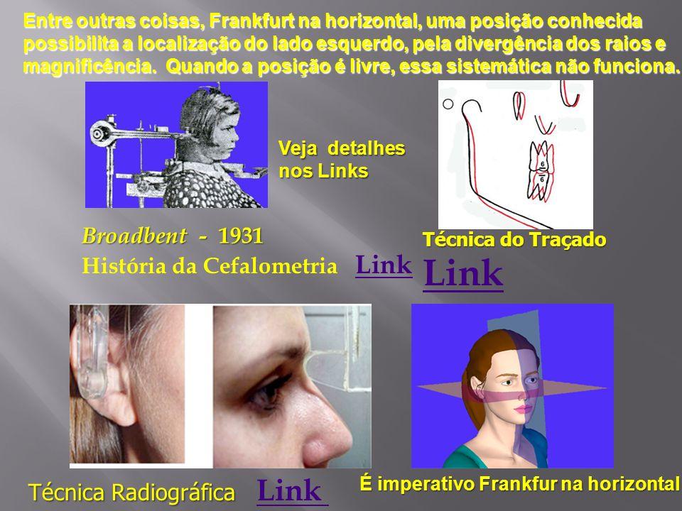 Broadbent - 1931 História da Cefalometria Link Link Técnica Radiográfica Técnica Radiográfica Link Link Técnica do Traçado Link É imperativo Frankfur