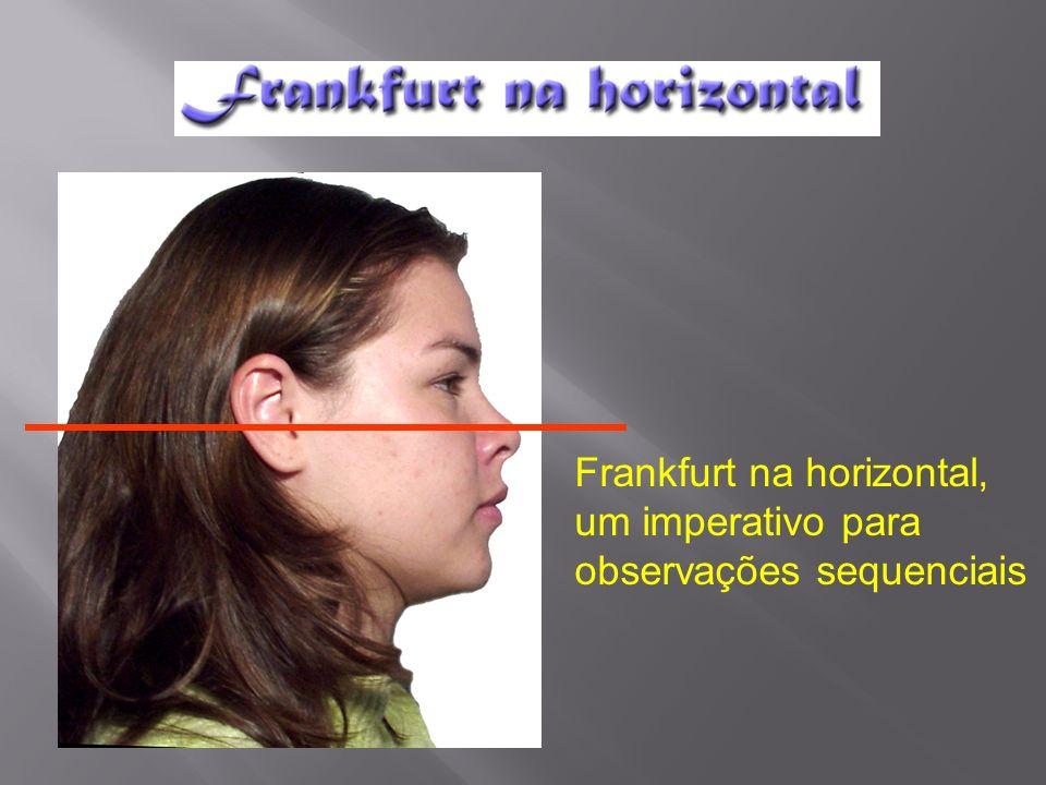 Este pôster mostra alguns aspectos da importância da posição da cabeça com Frankfurt na horizontal.