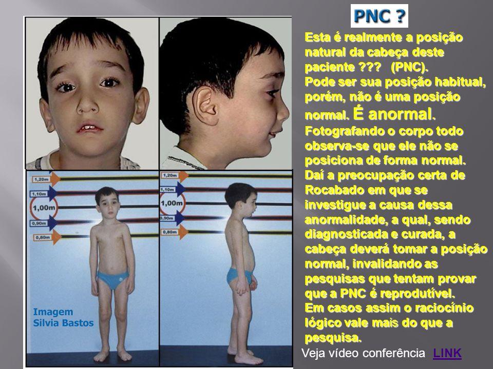 Esta é realmente a posição natural da cabeça deste paciente ??? (PNC). Pode ser sua posição habitual, porém, não é uma posição normal. É anormal. Foto