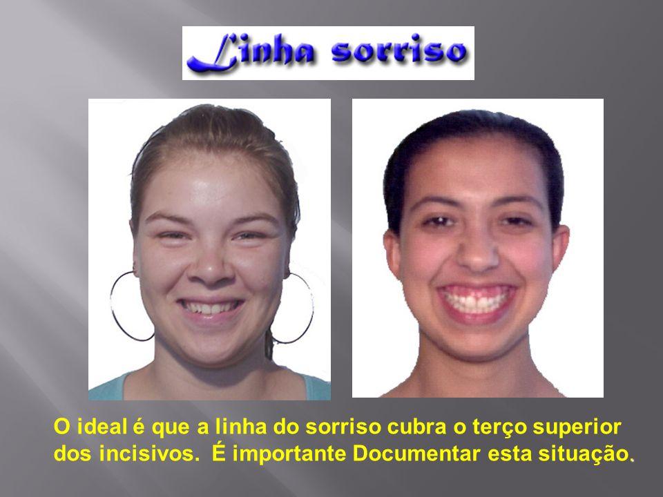 O ideal é que a linha do sorriso cubra o terço superior. dos incisivos. É importante Documentar esta situação.