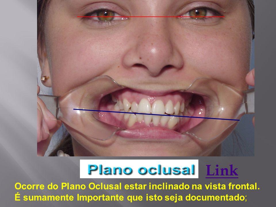 Link Ocorre do Plano Oclusal estar inclinado na vista frontal. ; É sumamente Importante que isto seja documentado;