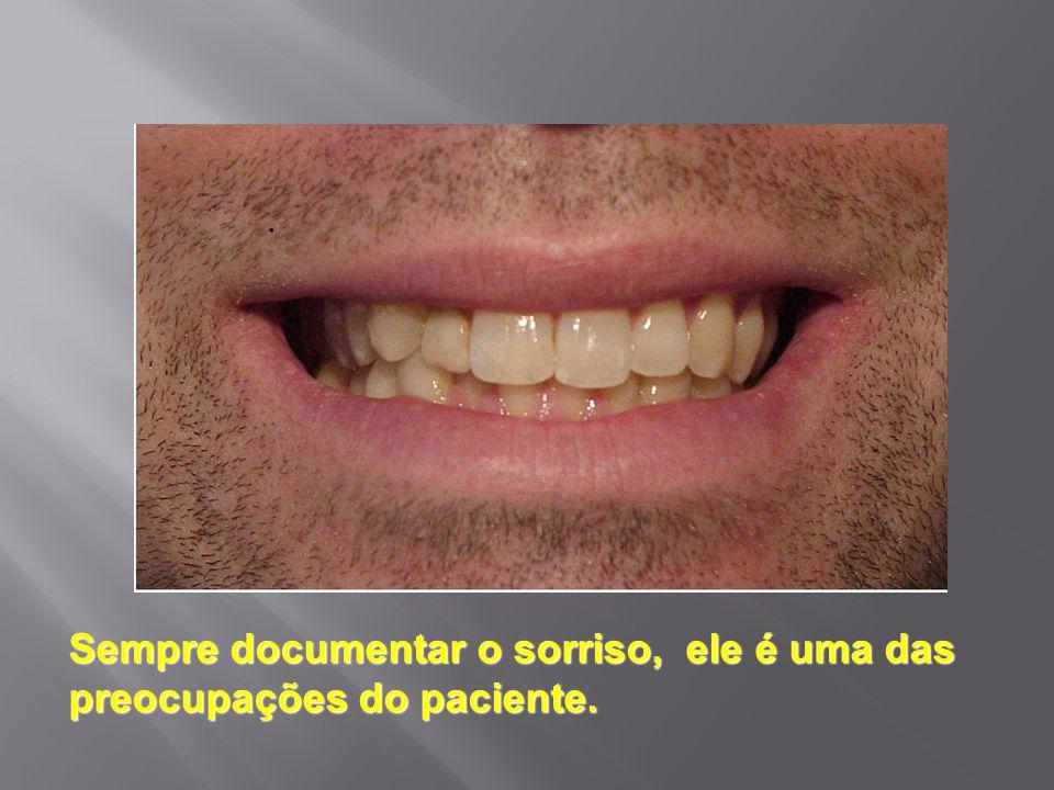 Sempre documentar o sorriso, ele é uma das preocupações do paciente.