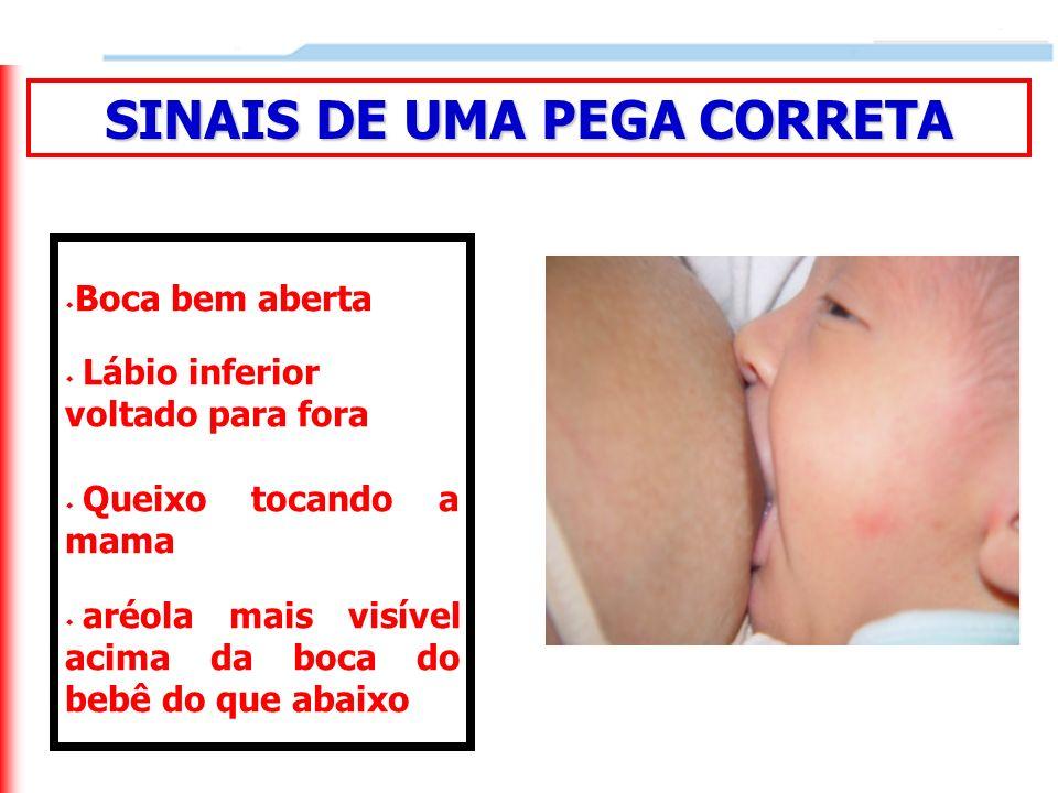 Boca bem aberta Lábio inferior voltado para fora Queixo tocando a mama aréola mais visível acima da boca do bebê do que abaixo SINAIS DE UMA PEGA CORR