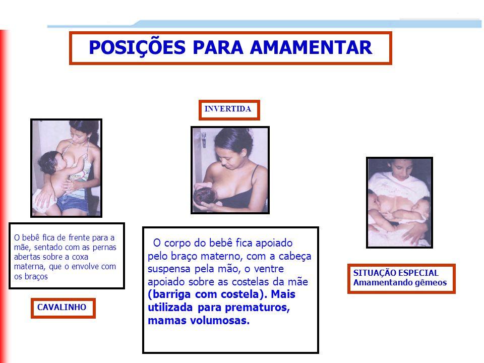 POSIÇÕES PARA AMAMENTAR INVERTIDA CAVALINHO SITUAÇÃO ESPECIAL Amamentando gêmeos O corpo do bebê fica apoiado pelo braço materno, com a cabeça suspens