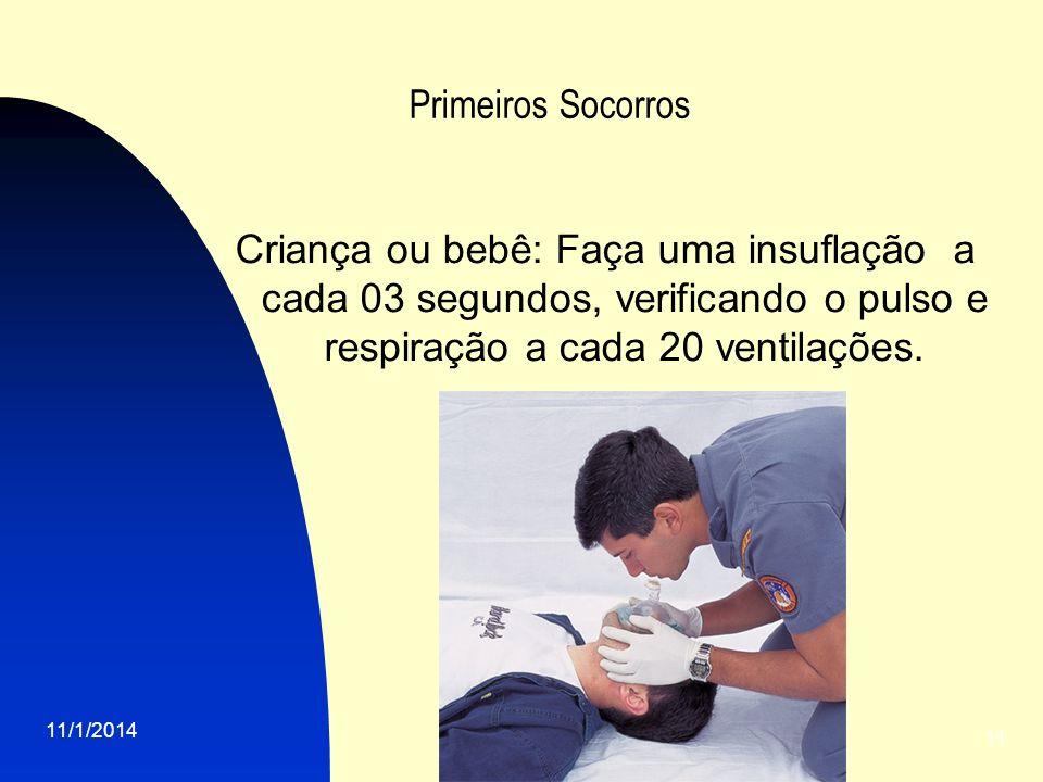 11/1/2014 11 Primeiros Socorros Criança ou bebê: Faça uma insuflação a cada 03 segundos, verificando o pulso e respiração a cada 20 ventilações.