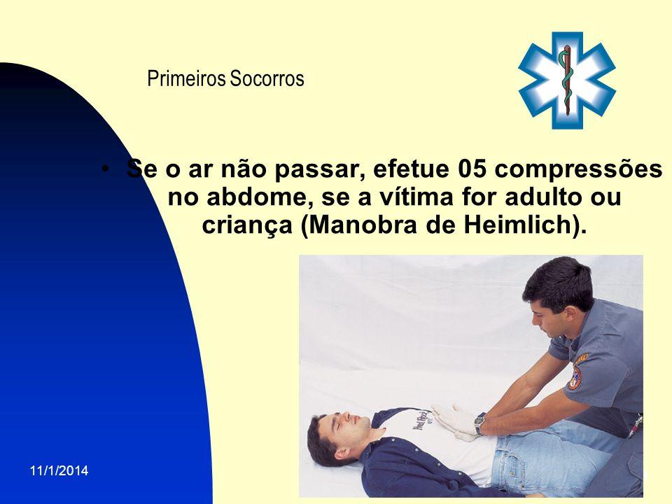 11/1/2014 14 Primeiros Socorros Se o ar não passar, efetue 05 compressões no abdome, se a vítima for adulto ou criança (Manobra de Heimlich).