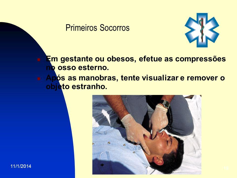 11/1/2014 15 Primeiros Socorros Em gestante ou obesos, efetue as compressões no osso esterno. Após as manobras, tente visualizar e remover o objeto es