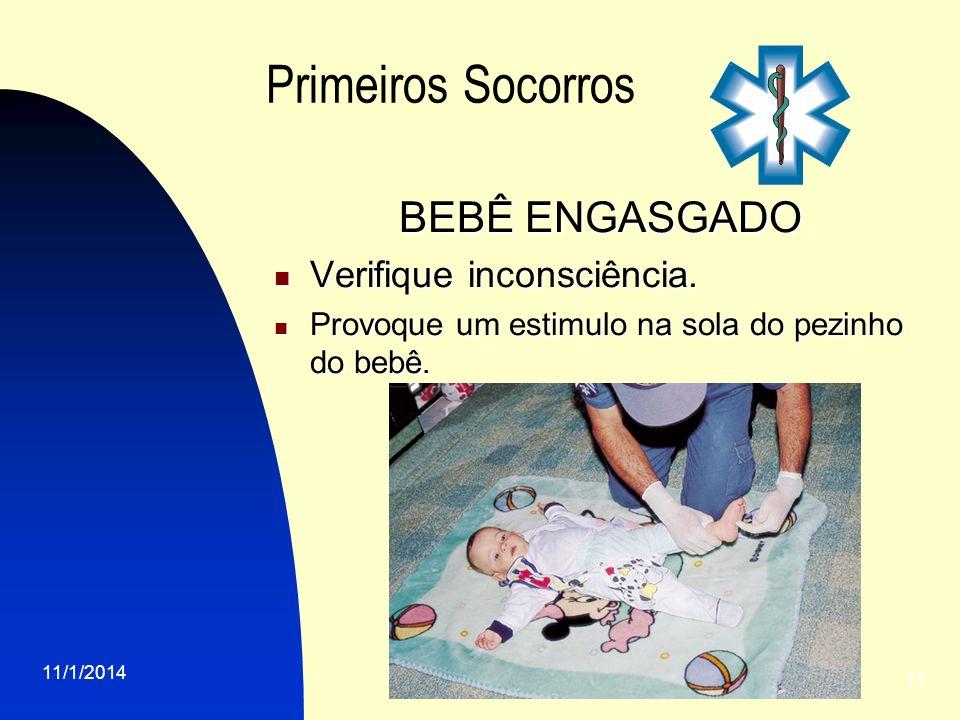 11/1/2014 17 Primeiros Socorros BEBÊ ENGASGADO Verifique inconsciência. Verifique inconsciência. Provoque um estimulo na sola do pezinho do bebê. Prov