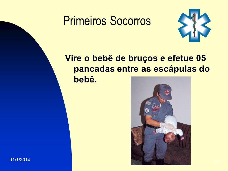 11/1/2014 21 Primeiros Socorros Vire o bebê de bruços e efetue 05 pancadas entre as escápulas do bebê.