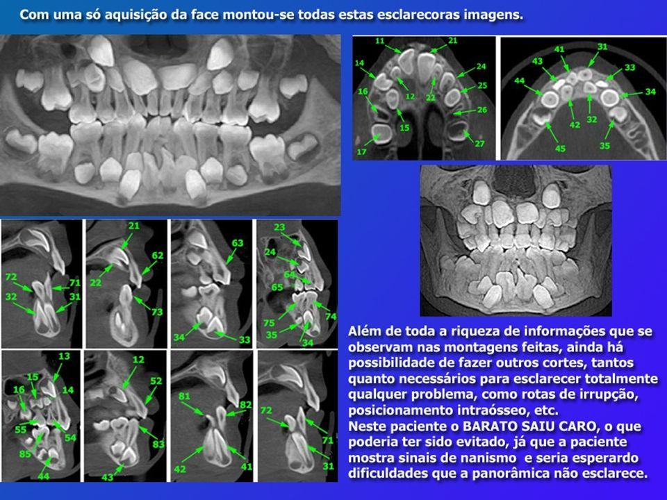 Diagnóstico 3D em Ortodontia – A Tomografia Cone-Beam Aplicada, autoria de Maurício Accorsi e Leandro Velasco, da Editora Napoleão, aborda justamente o tema do SROO, a Tomografia Cone-Beam Aplicada, parece até que o livro foi construído para nosso Simpósio.