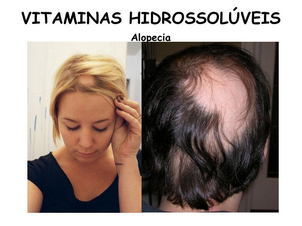 VITAMINAS HIDROSSOLÚVEIS Alopecia