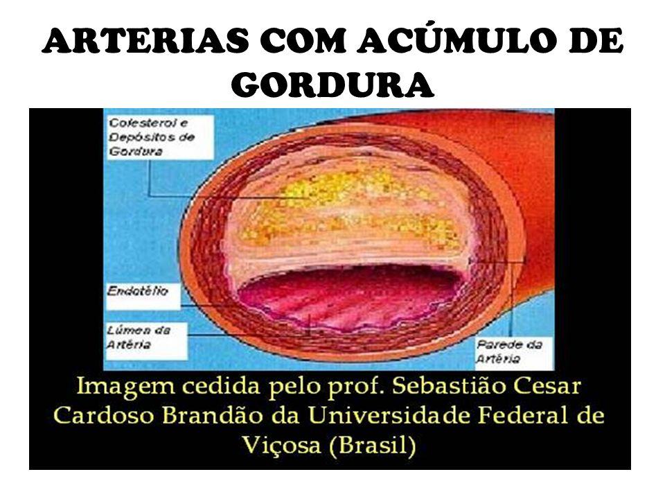 ARTERIAS COM ACÚMULO DE GORDURA