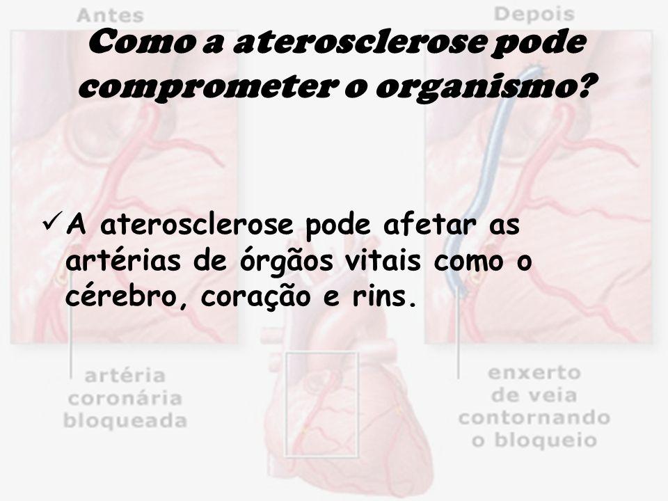 Como a aterosclerose pode comprometer o organismo? A aterosclerose pode afetar as artérias de órgãos vitais como o cérebro, coração e rins.