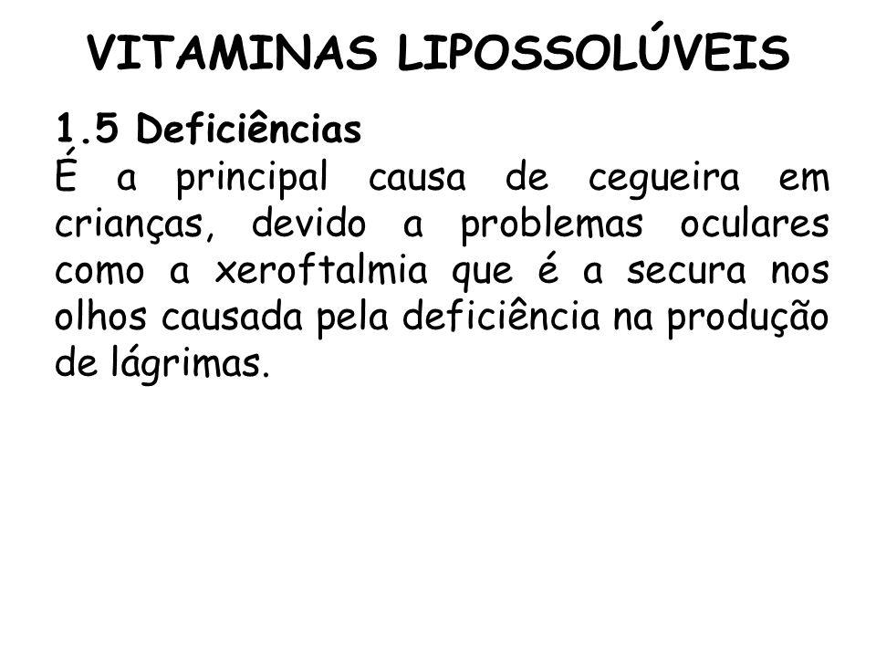 VITAMINAS LIPOSSOLÚVEIS 1.5 Deficiências É a principal causa de cegueira em crianças, devido a problemas oculares como a xeroftalmia que é a secura no