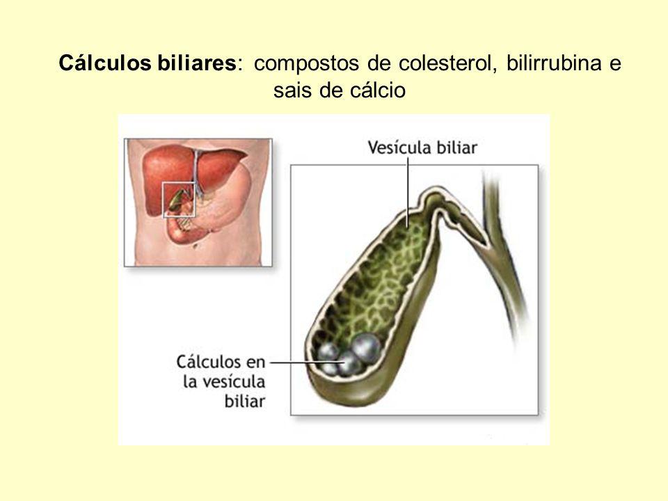 Cálculos biliares: compostos de colesterol, bilirrubina e sais de cálcio