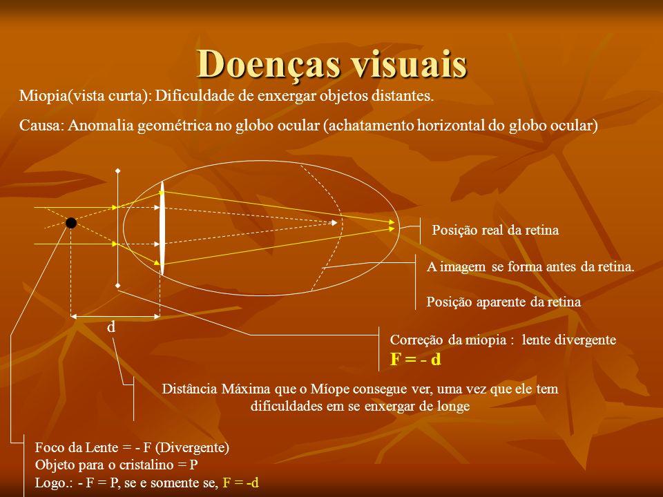 Definições Acomodação visual: Quando a imagem se forma exatamente sobre a retina. Emetrope: Olho normal (sem defeitos visuais) Ponto Remoto: A maior d