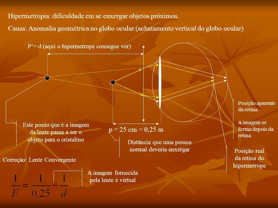 Doenças visuais Miopia(vista curta): Dificuldade de enxergar objetos distantes. Causa: Anomalia geométrica no globo ocular (achatamento horizontal do