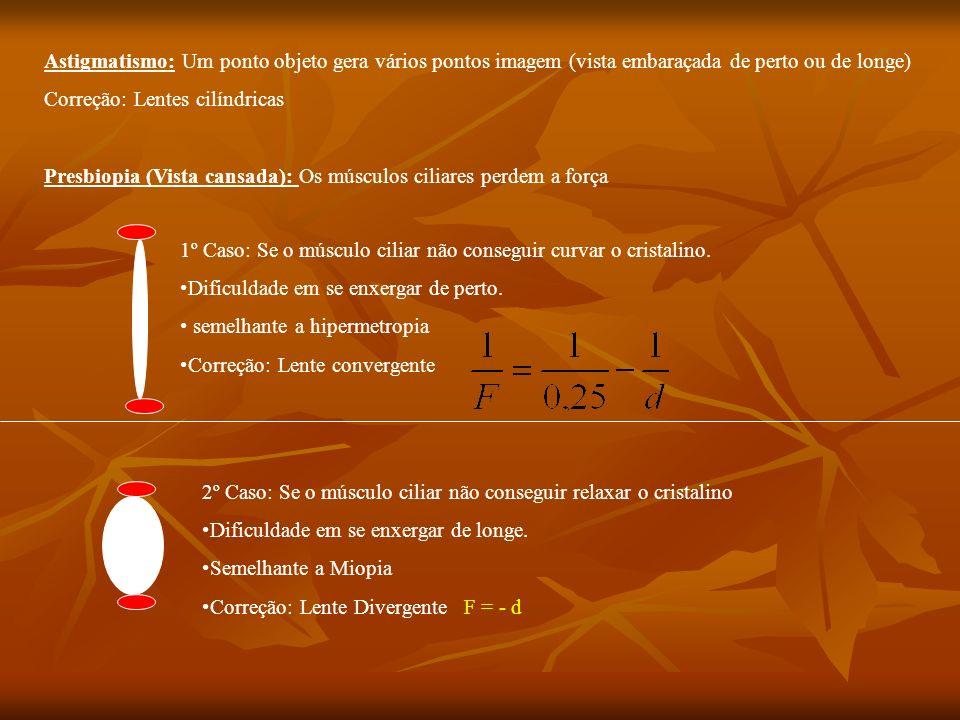 Hipermetropia: dificuldade em se enxergar objetos próximos. Causa: Anomalia geométrica no globo ocular (achatamento vertical do globo ocular) p = 25 c