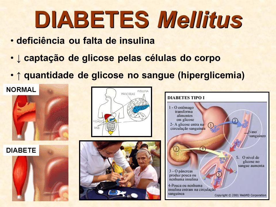 DIABETES Mellitus da [glicose] no plasma e no filtrado glomerular supera a capacidade máxima de reabsorção no TCP perda de glicose na urina (glicosúria)