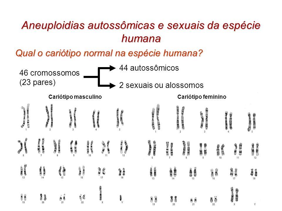 Aneuploidias autossômicas e sexuais da espécie humana Qual o cariótipo normal na espécie humana? 46 cromossomos (23 pares) 44 autossômicos 2 sexuais o