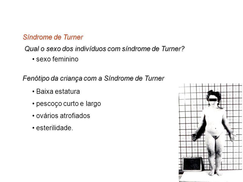 Qual o sexo dos indivíduos com síndrome de Turner? Síndrome de Turner sexo feminino Fenótipo da criança com a Síndrome de Turner Baixa estatura pescoç