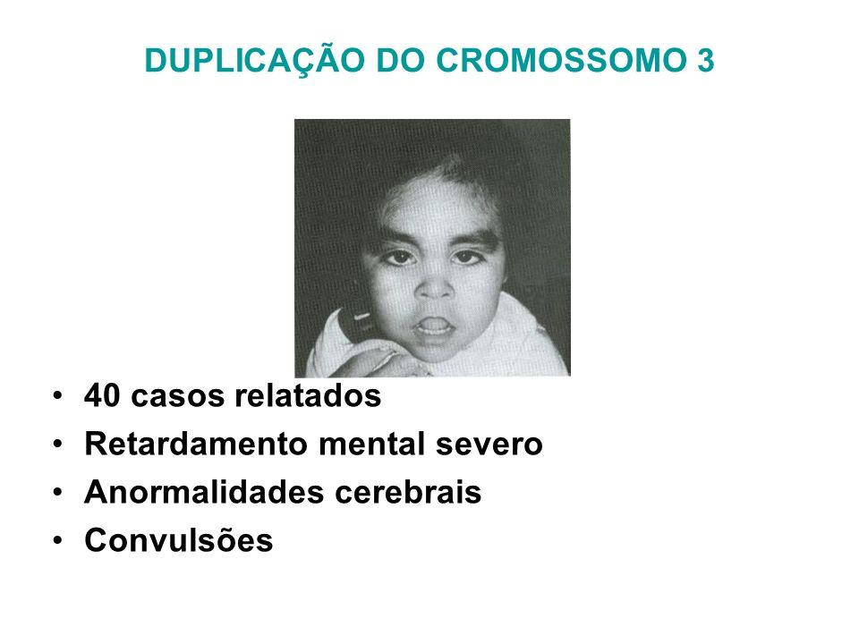 DUPLICAÇÃO DO CROMOSSOMO 3 40 casos relatados Retardamento mental severo Anormalidades cerebrais Convulsões