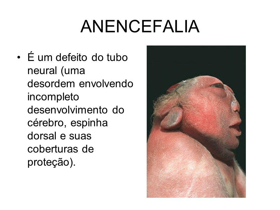 ANENCEFALIA É um defeito do tubo neural (uma desordem envolvendo incompleto desenvolvimento do cérebro, espinha dorsal e suas coberturas de proteção).
