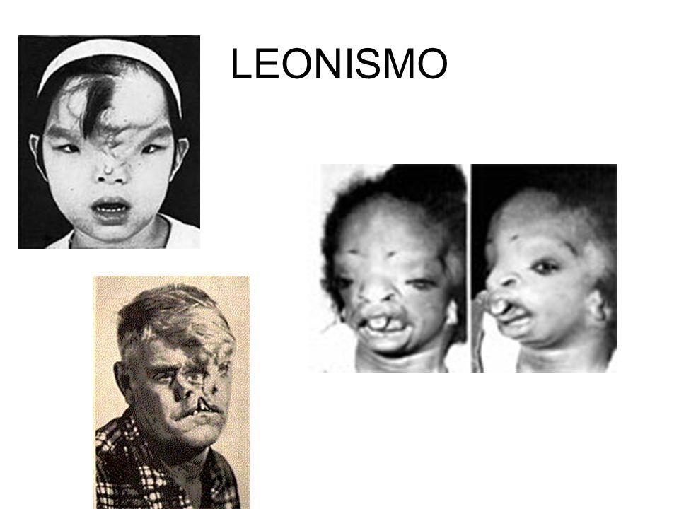 LEONISMO