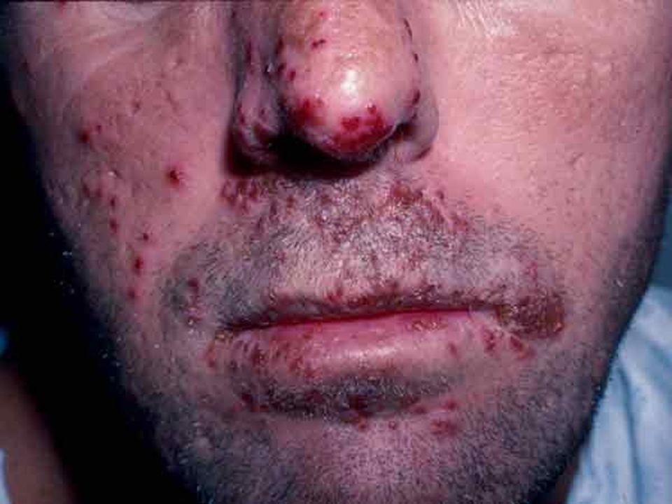 HERPES SIMPLES LABIAL TRANSMISSÃO Contato direto ou indireto com objetos contaminados SINTOMAS Lesões nos lábios PROFILAXIA Evitar contato direto